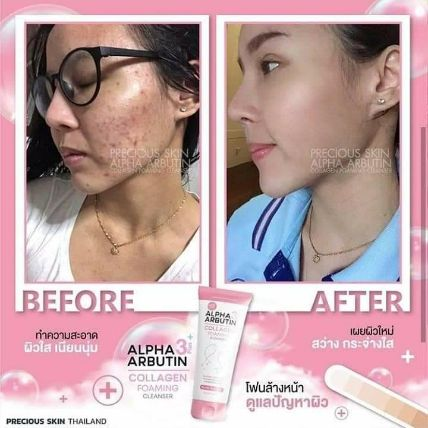 Sữa rửa mặt Alpha Arbutin Collagen Foaming Cleanser ảnh 10