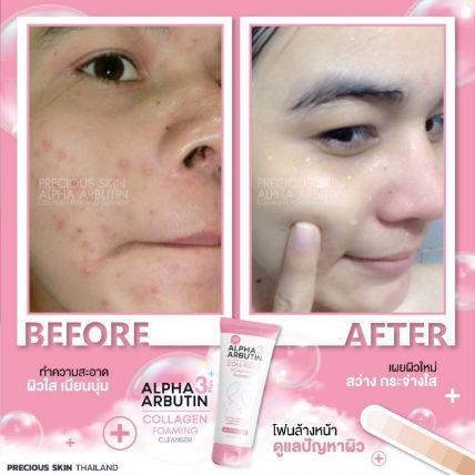 Sữa rửa mặt Alpha Arbutin Collagen Foaming Cleanser ảnh 11