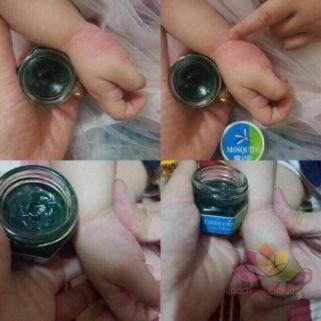 Dầu bôi trị muỗi đốt Yanhee Green Balm Mosquito Brand ảnh 3