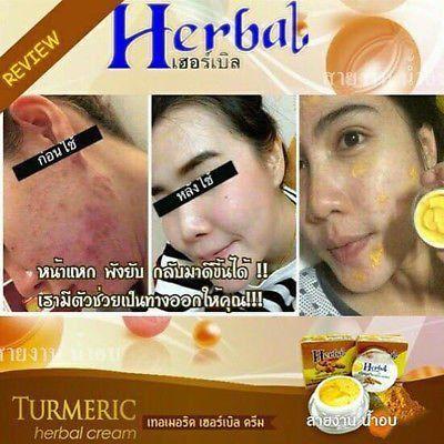 Kem nghệ trị sẹo mụn Herbal Cream