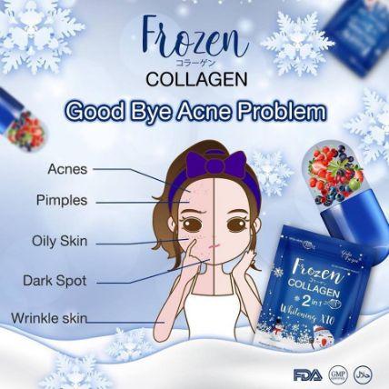 Viên uống Frozen Collagen 2 in 1 Whitening X10 ảnh 5
