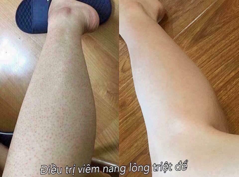 Kela Lotion đặc trị viêm lỗ chân lông