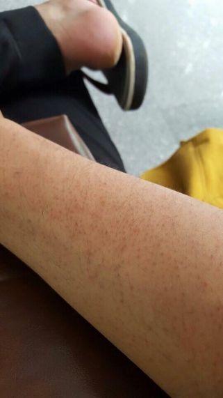 Kela Lotion đặc trị viêm lỗ chân lông ảnh 4