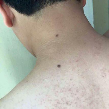 Kela Lotion đặc trị viêm lỗ chân lông ảnh 5