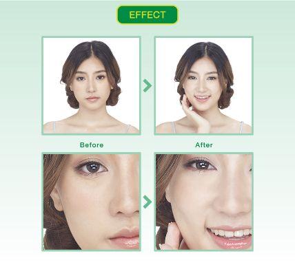 Hộp 10 mặt nạ cao cấp 3D nha đam Vitamin Aloe Vera  ảnh 8